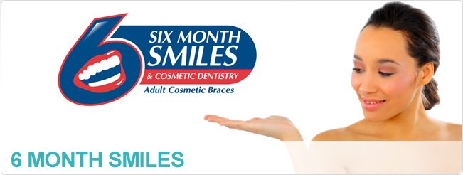 6 Month Smiles Braces Leicester