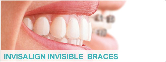 Invisalign Invisible Braces Leicester